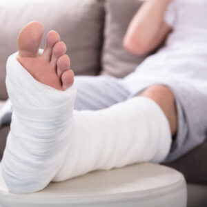 a man with a bone fracture